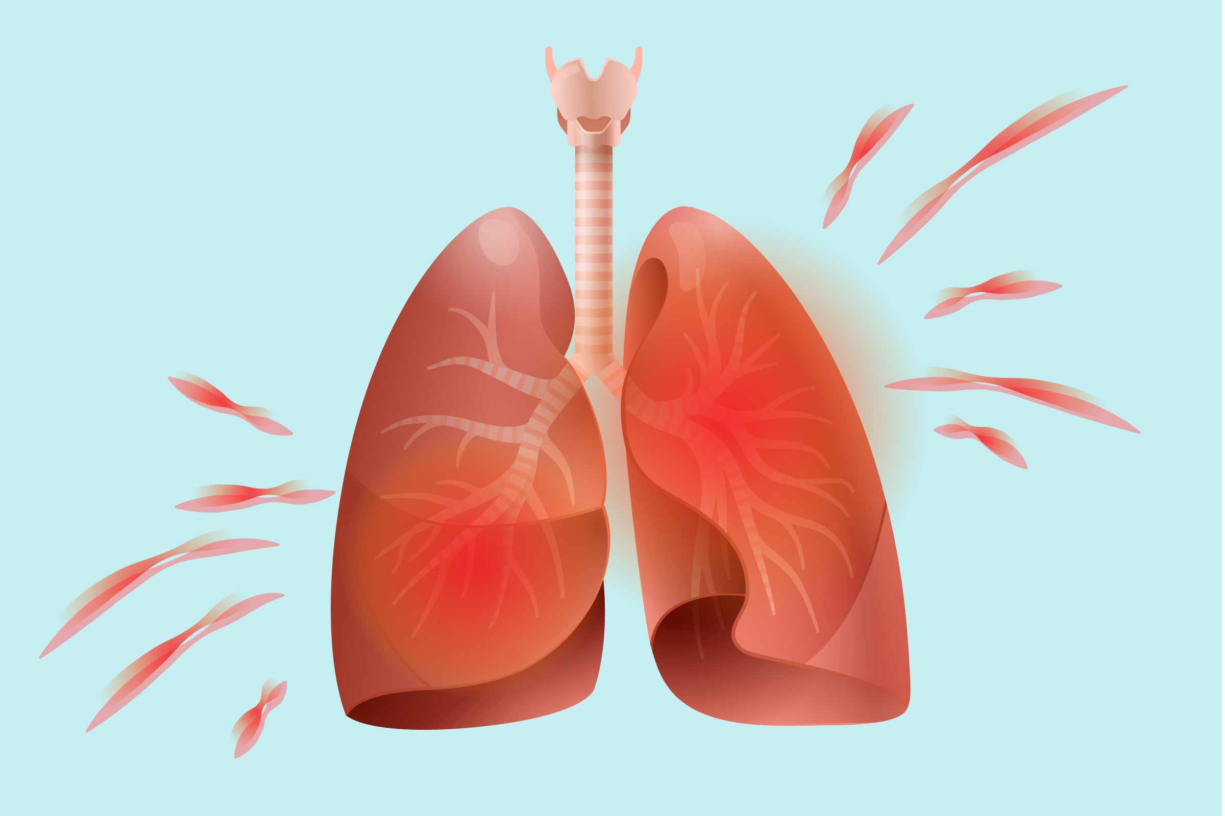 How inflammatory arthritis affects. Cough clipart respiratory problem