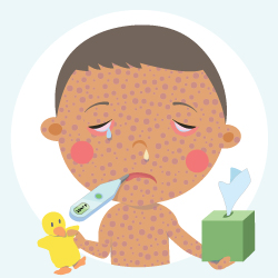 Flu clipart measles virus. Signs and symptoms cdc