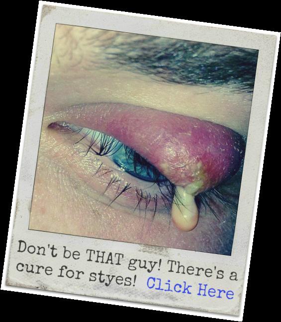 Eyeball clipart eye surgery. Styes treatment symptoms causes