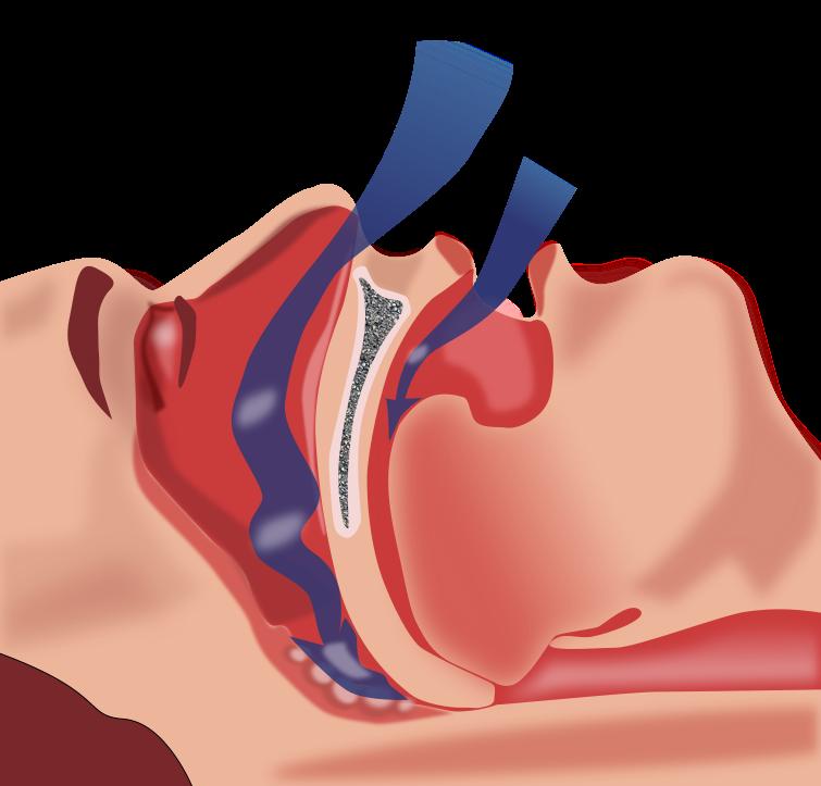 Dental clipart animation. Sleep medicine grateful