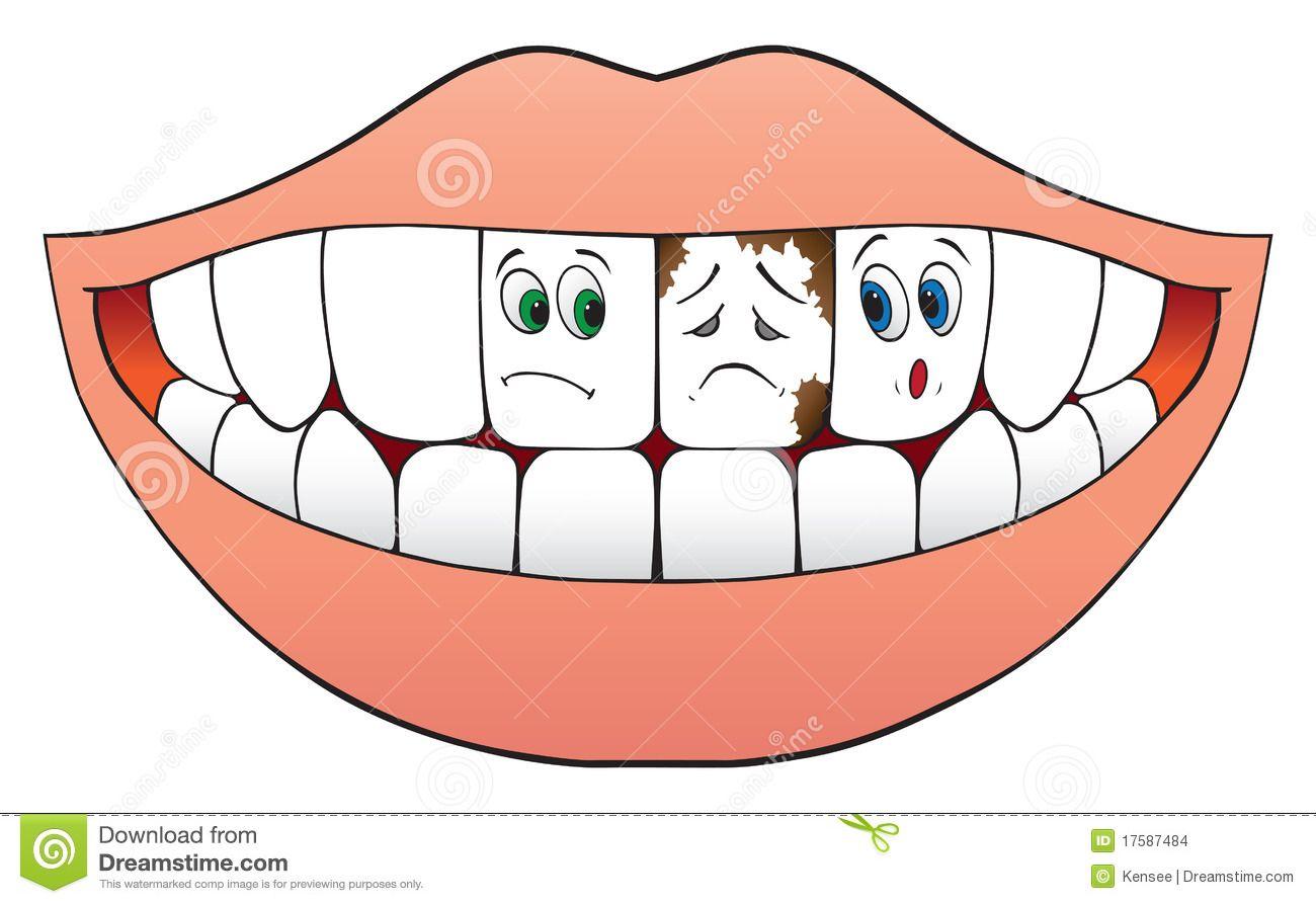 Dental clipart bad tooth. Pin em dentist theme