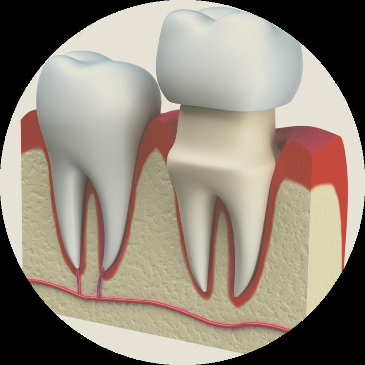 Tooth dental crown