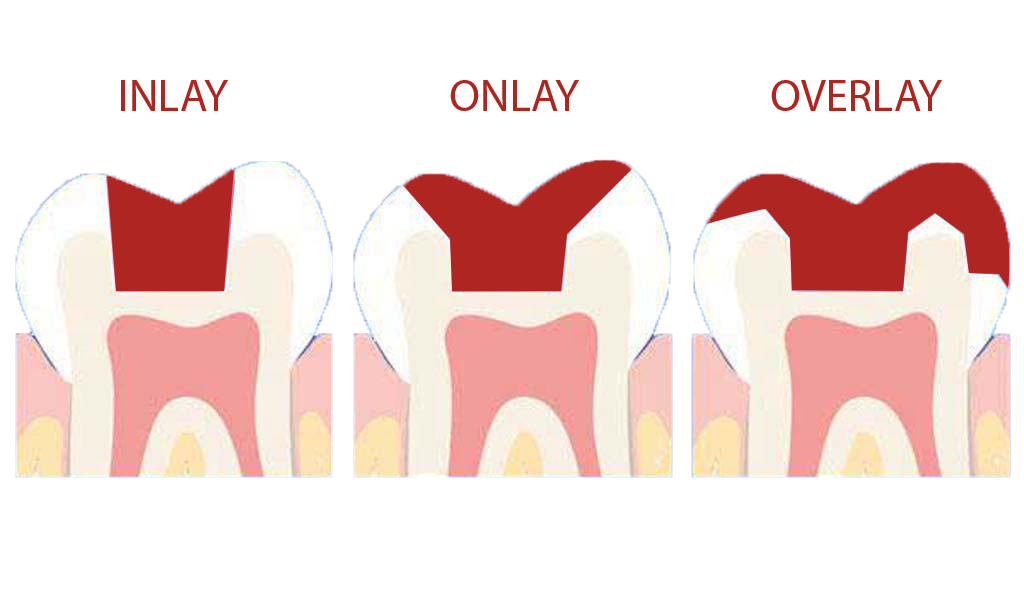 Dentist clipart dental lab. Cosmetic in nassau county