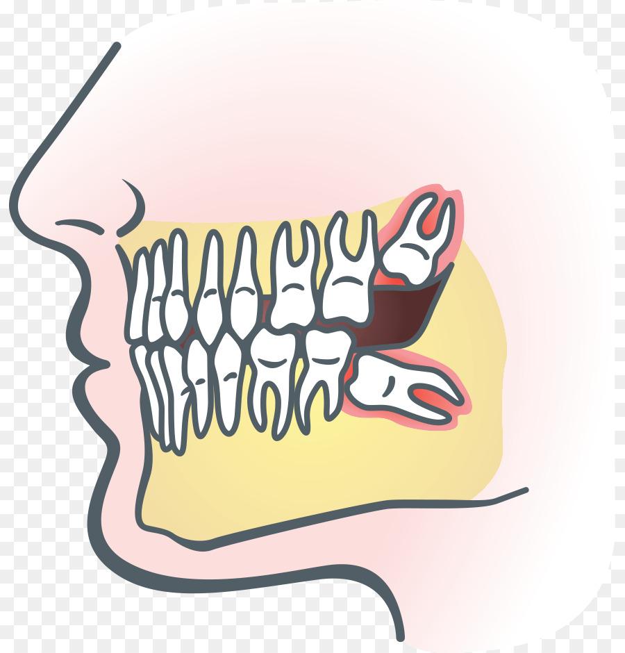 Dentist clipart dental pain. Teeth cartoon dentistry tooth