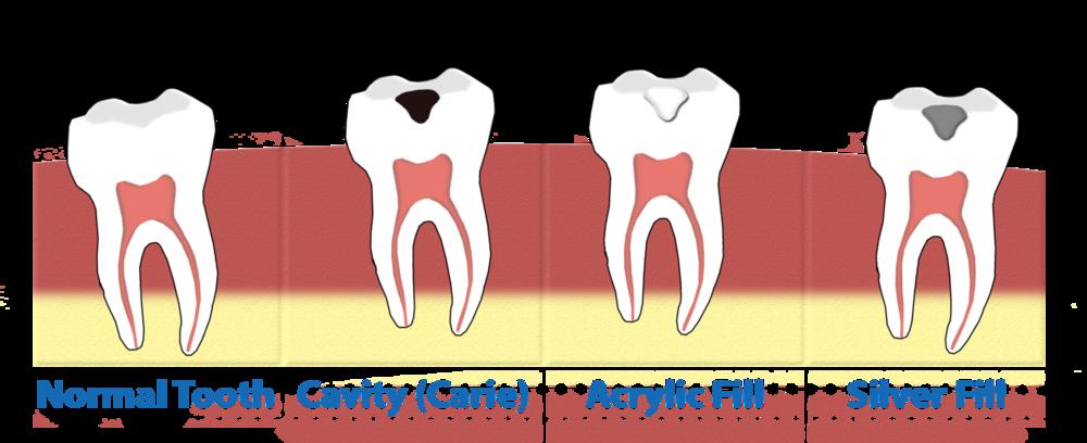Dentist clipart dental sealant. Sealants gentle family implant