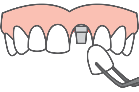 Dentist clipart one tooth. Dental implants in chicago