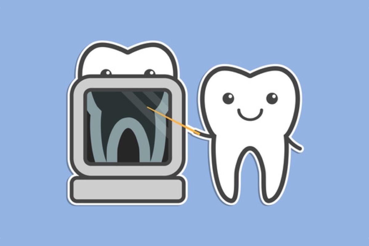Dentist clipart tooth xray. How dental x rays