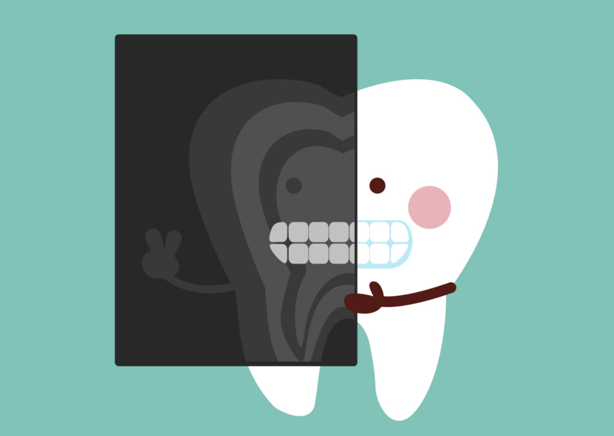 What are the different. Dentist clipart tooth xray