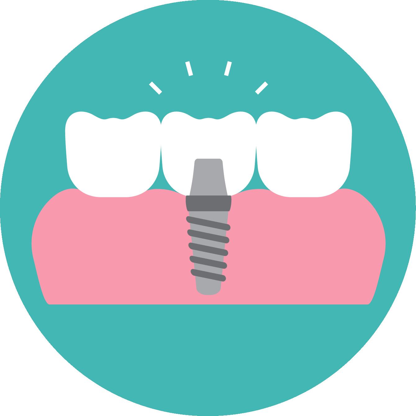 Home diem dental east. Dentist clipart tooth xray