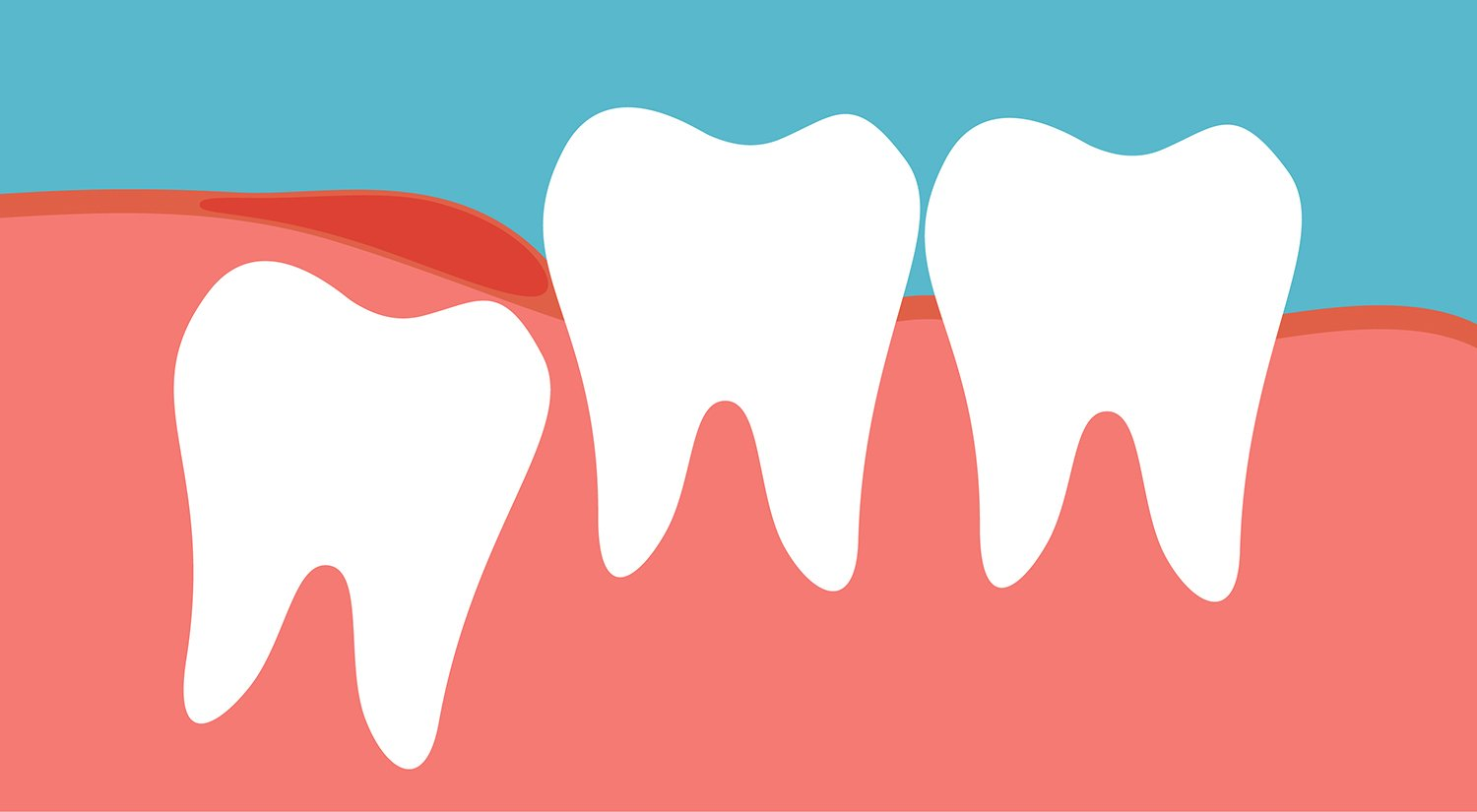 Wisdom teeth coming in. Hurt clipart tooth ache