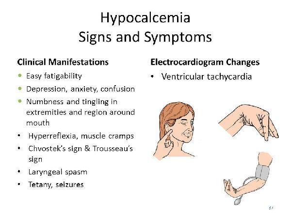 Gestational mellitus manifestations . Diabetes clipart clinical manifestation