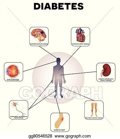 Diabetes clipart complication diabetes. Vector illustration complications eps