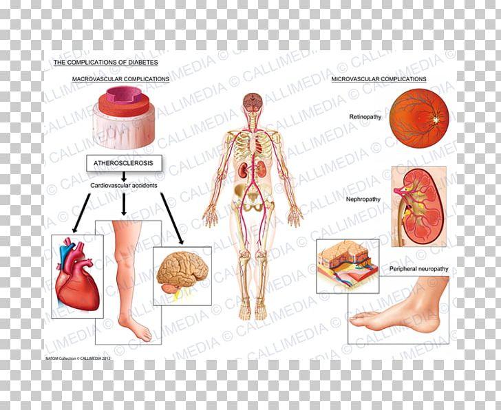 Complications of mellitus medicine. Diabetes clipart complication diabetes