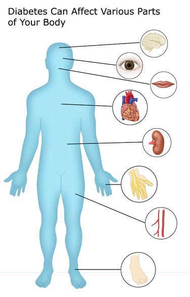 Complications of real world. Diabetes clipart complication diabetes
