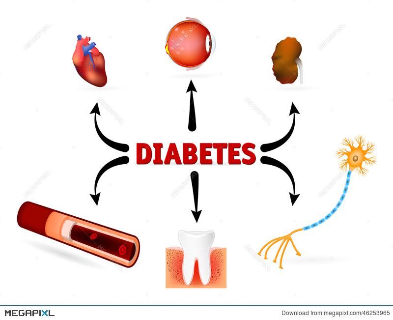 Complications of mellitus illustration. Diabetes clipart complication diabetes