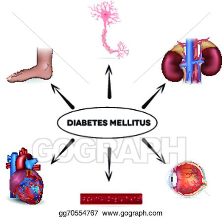 Diabetes clipart complication diabetes. Vector illustration mellitus eps