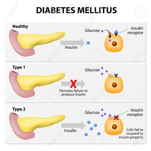 Juvenile free images at. Diabetes clipart diabetes education