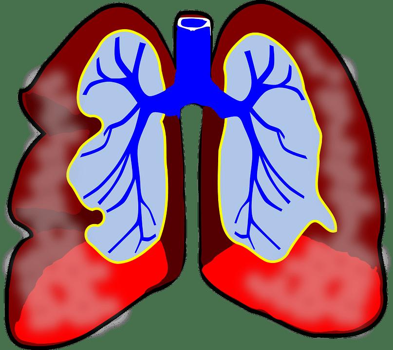Medicinal value of davana. Disease clipart antiseptic