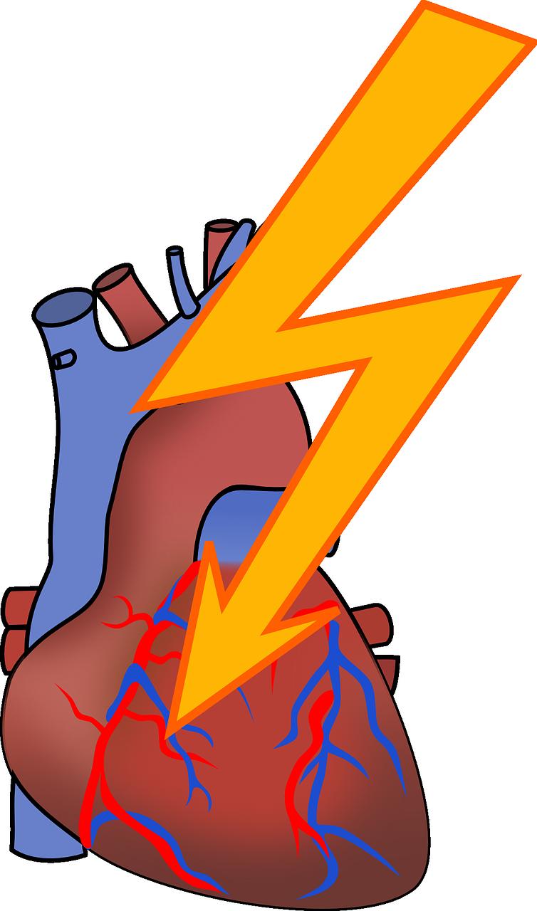Biotechin asia your biotech. Disease clipart cardiac