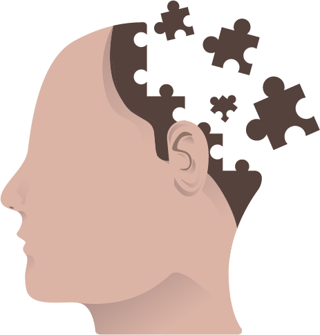 Alzheimer s a complete. Disease clipart caused