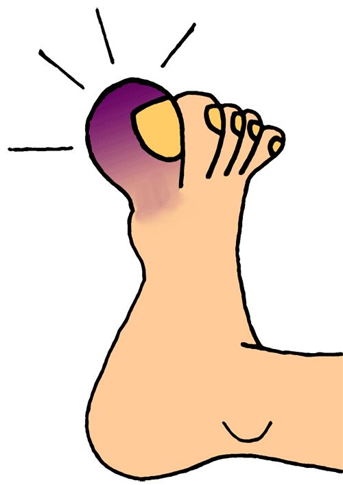 A perfect world clip. Hurt clipart foot pain