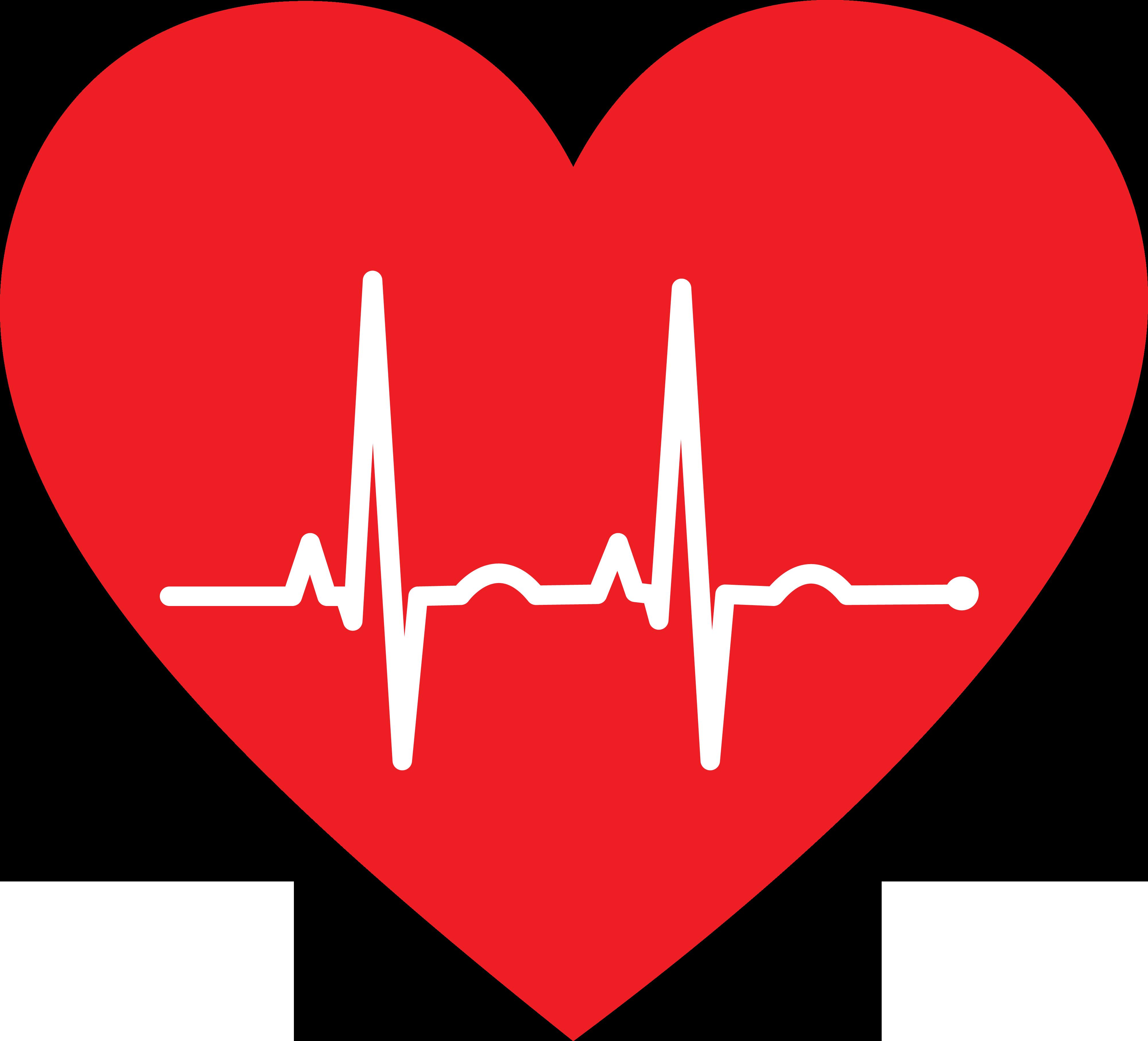 ekg huge freebie. Heartbeat clipart triglyceride