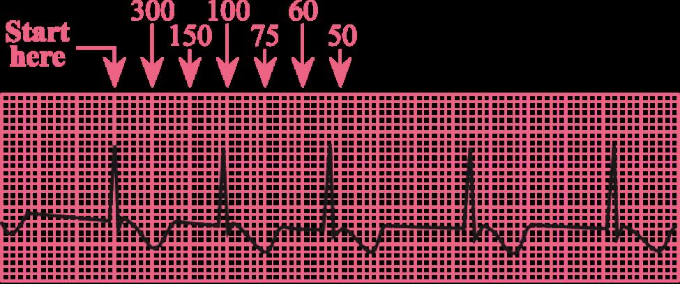 lead ecg placement. Ekg clipart heart rate
