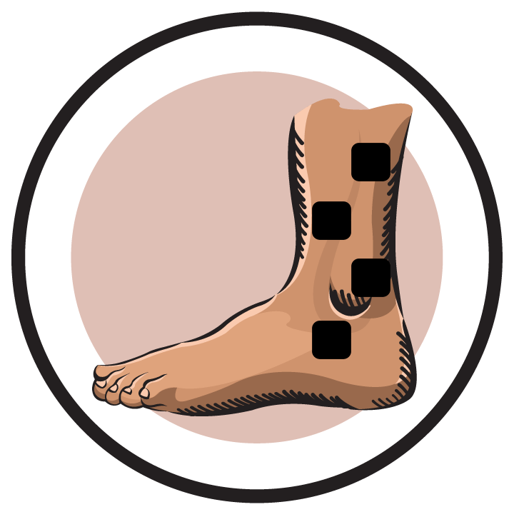 Electrode pad placement by. Hurt clipart ankle injury