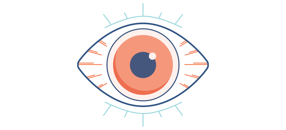 What is dry eye. Evaporation clipart dried