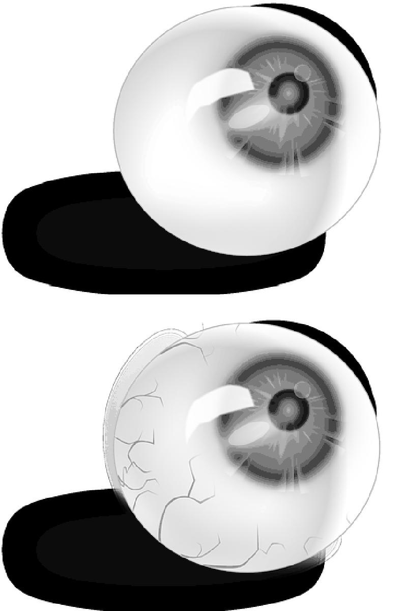 Eyeball anatomy red veins. Eyeballs clipart blood