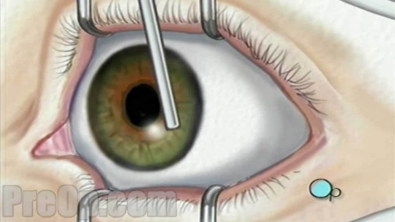 Laser prk preop patient. Eyeballs clipart eye surgery