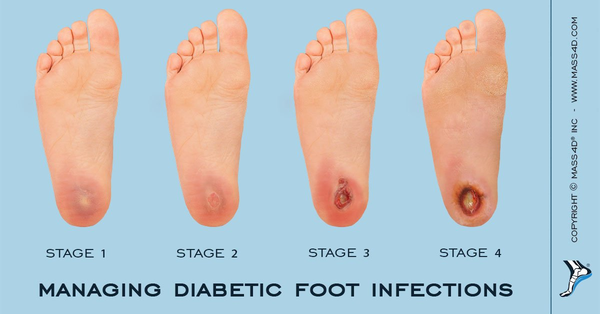 Feet clipart diabetic foot. Ulcer causes symptoms treatment