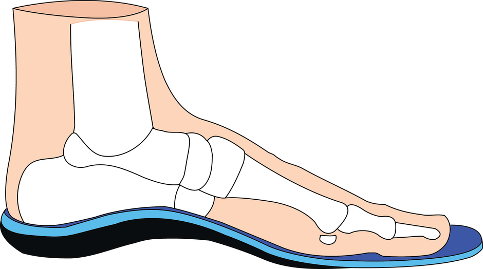 Foot clipart lower limb. Resonance dynamic orthotics prescription