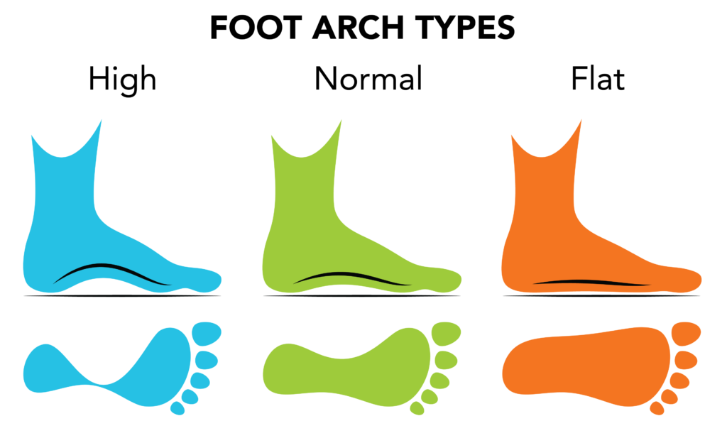 Running shoes chose wisely. Hurt clipart foot pain