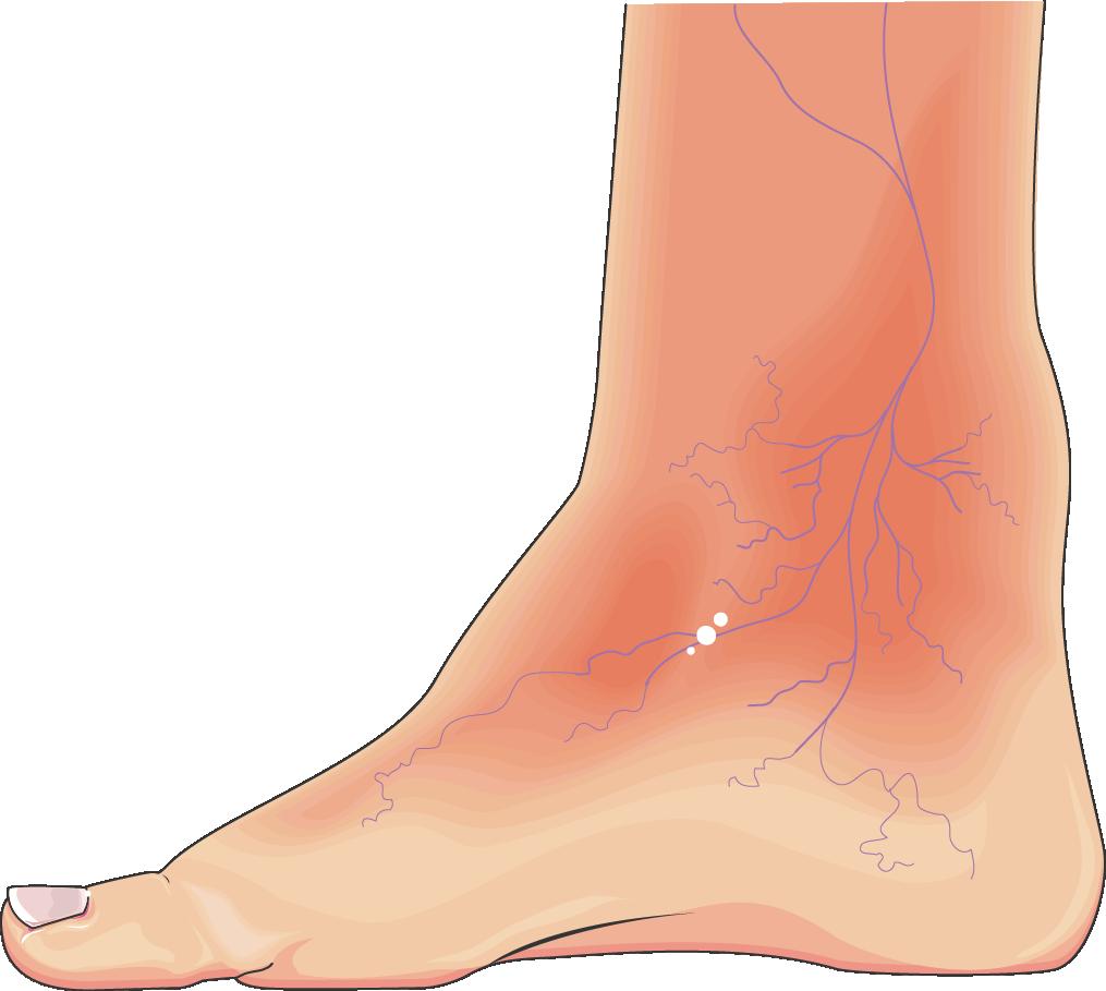 Feet clipart toe. Diabetic foot servier medical