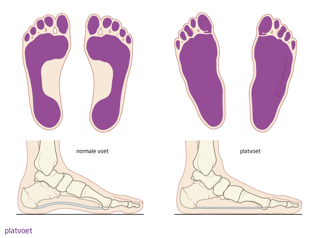 Feet clipart voet. Ocon aandoening platvoet spreidvoet