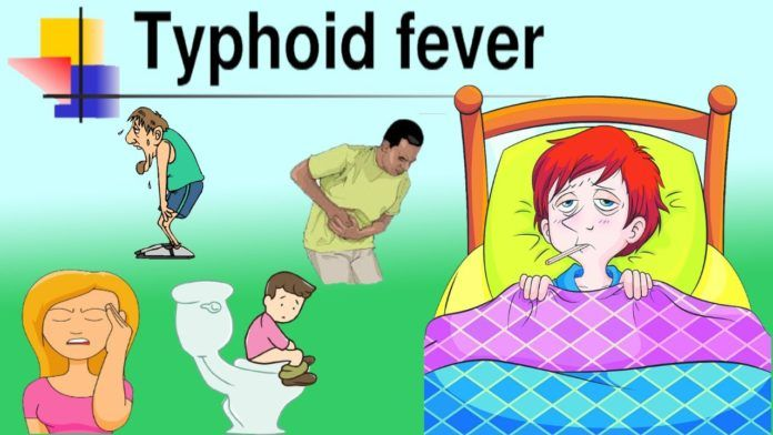 Fever clipart acute disease. Typhoid an systemic and