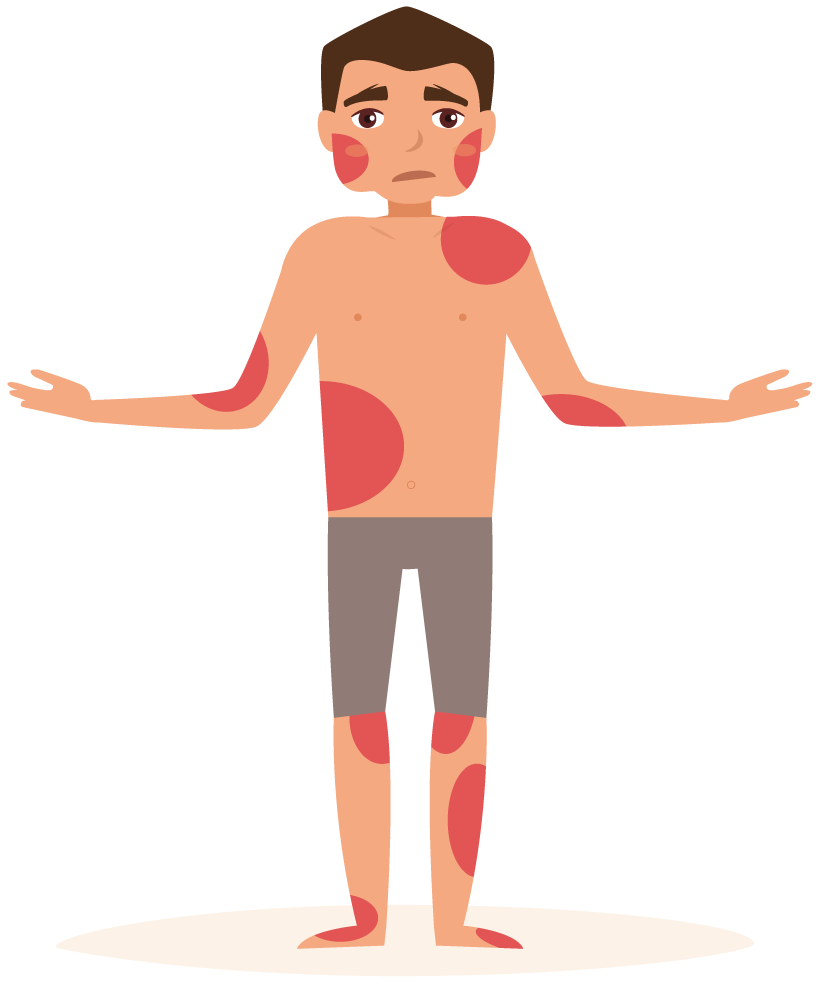 Hurt clipart skinned knee. How to treat eczema