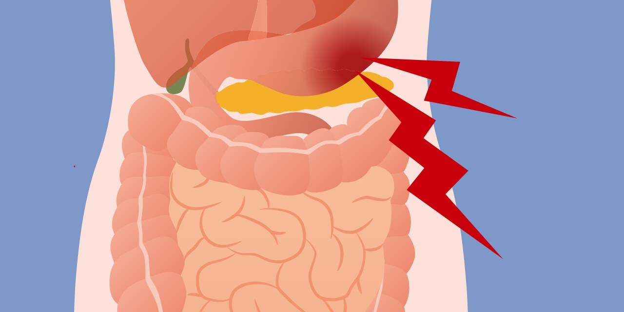 Abdominal pain how to. Hurt clipart stomach ache