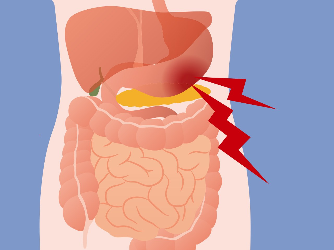 Abdominal pain how to. Hurt clipart full tummy