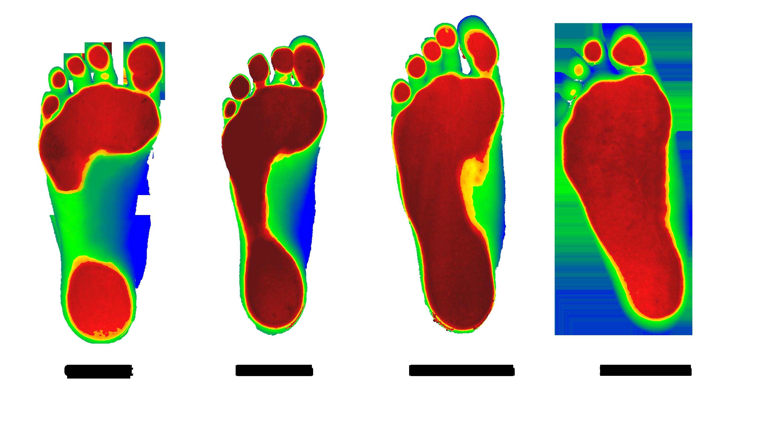 Levelers advantage middletown health. Kind clipart kind hand foot