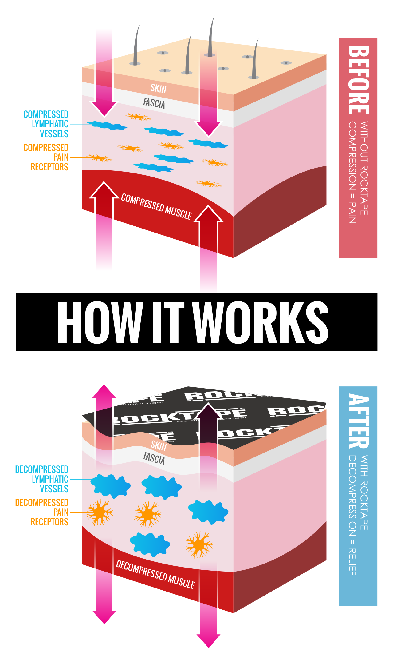 How does tape work. Fitness clipart kinesiology