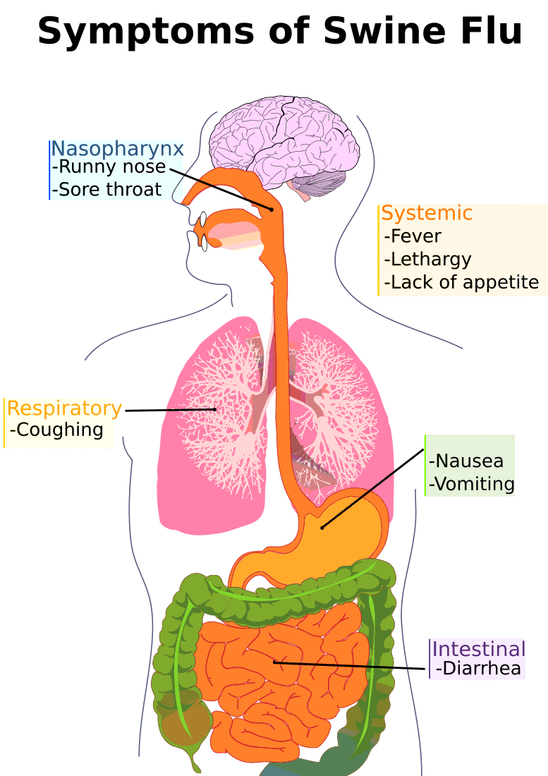 Swine symptoms diagram medical. Flu clipart coughing
