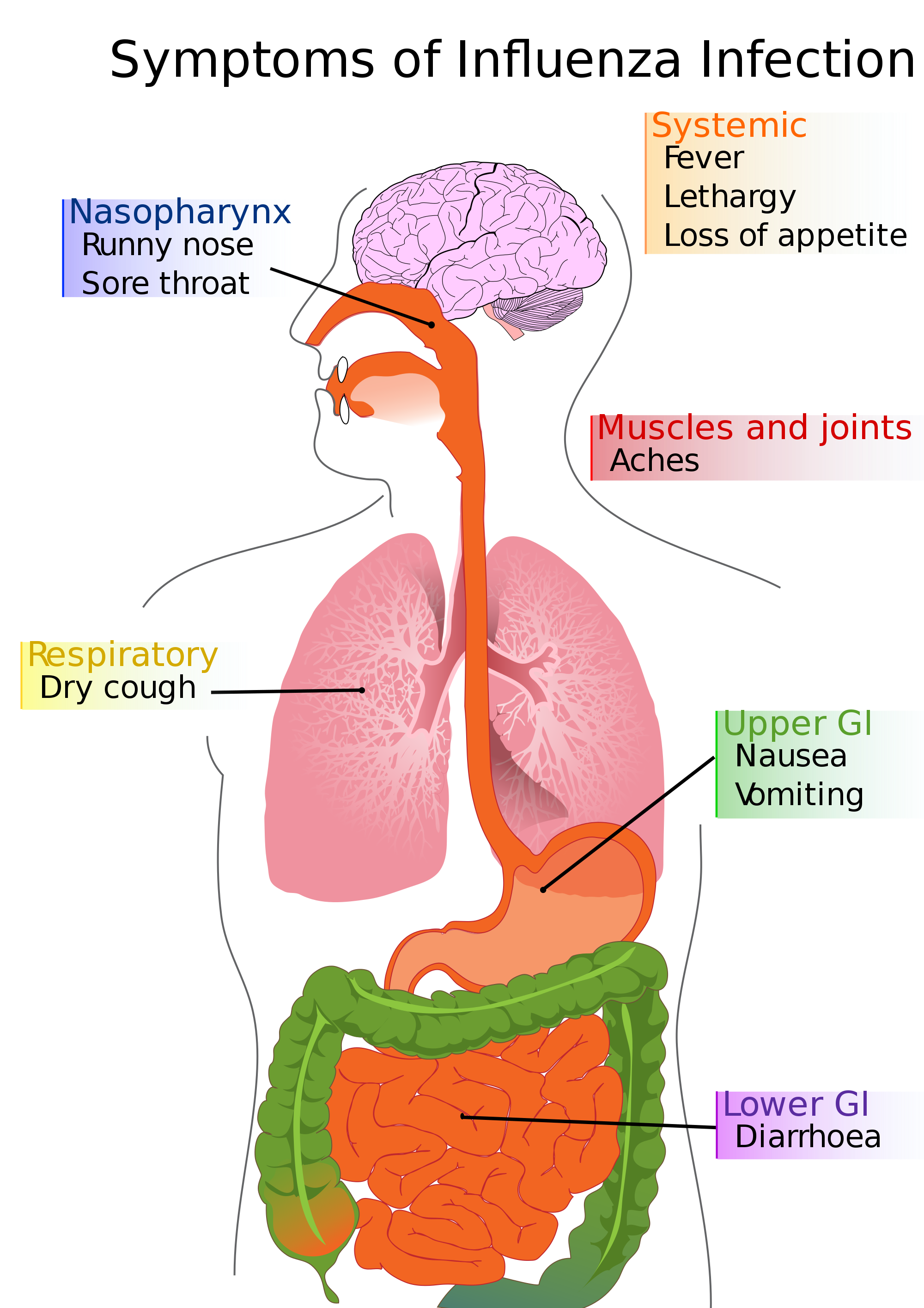 File diagram of infection. Flu clipart influenza symptom