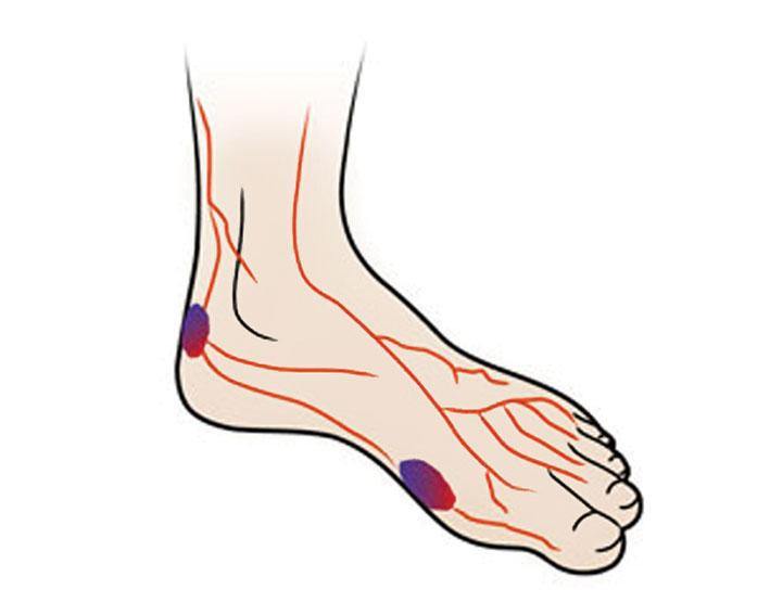 Foot clipart diabetic foot. The can orthotics help