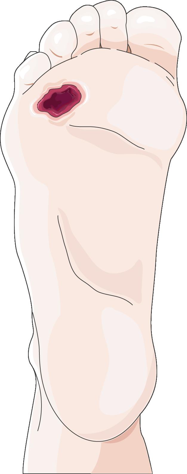 Foot clipart diabetic foot. Servier medical art free
