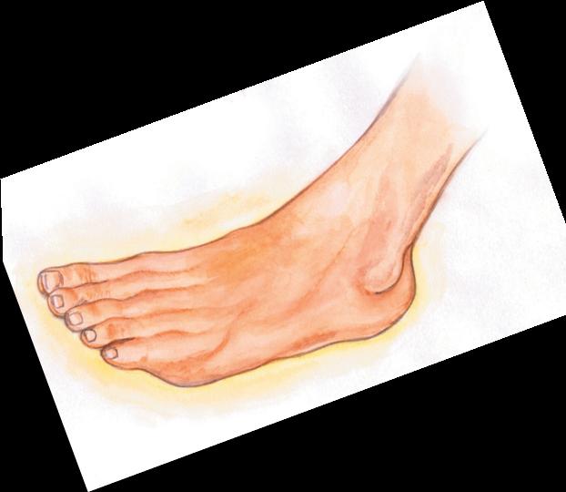 Wockhardt guide on diabetes. Foot clipart diabetic foot