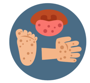 And mouth disease kids. Foot clipart hand foot