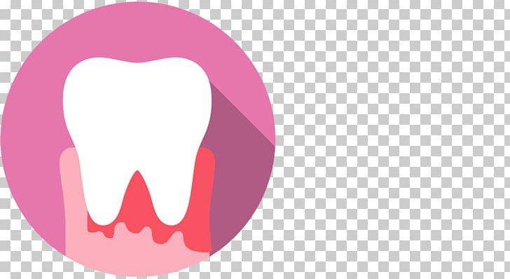 Mouth gums dentist png. Gum clipart human tooth