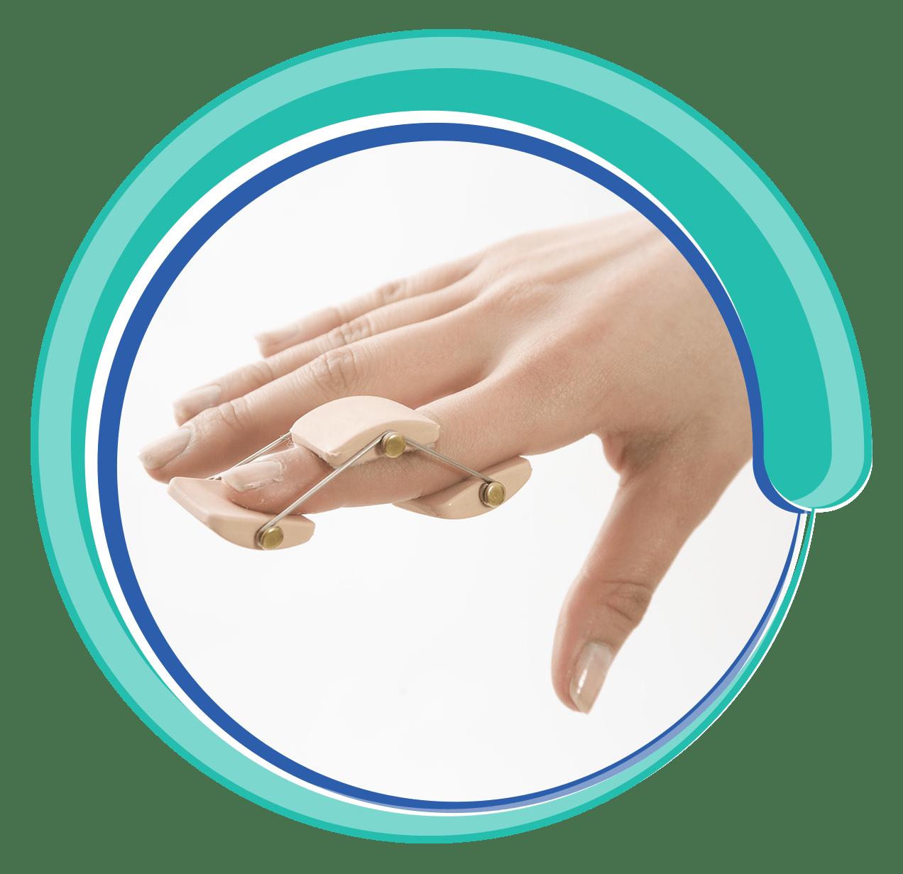 Handshake clipart skin to skin. Finger hand wrist splintsrayatgrup